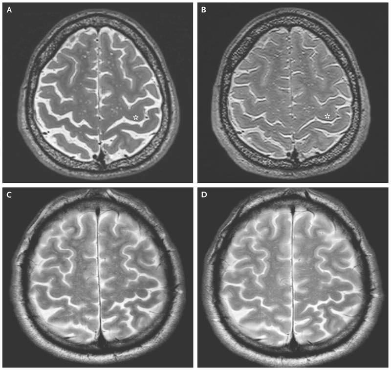 اسکن مغز فضانوردان / Astronauts Brain Scan