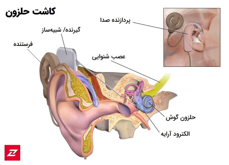 Cochlear implant / کاشت حلزون