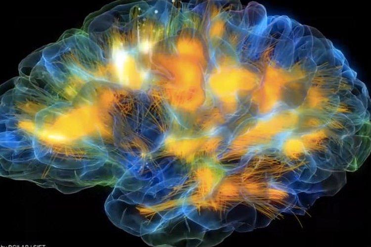 شبیه سازی مغز